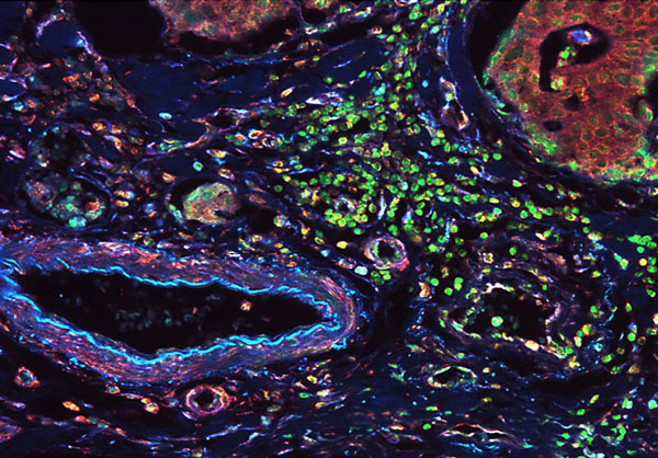Fluorescent detection of vimentin and lamin IHC B1 in normal colon tissue. Sections of normal human colon cancer tissues were blocked with BSA buffer Thermo Scientific blocking windows before incubation with anti-vimentin antibodies and anti-lamin B1 antibody, followed by incubation with Thermo Scientific DyLight 405 goat anti-mouse or Thermo Scientific DyLight 549 goat anti-rabbit secondary antibodies, respectively. The cell nuclei were against green. Introduction